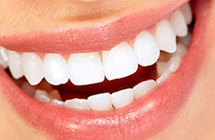 Teeth Whitening in Hudson Oaks